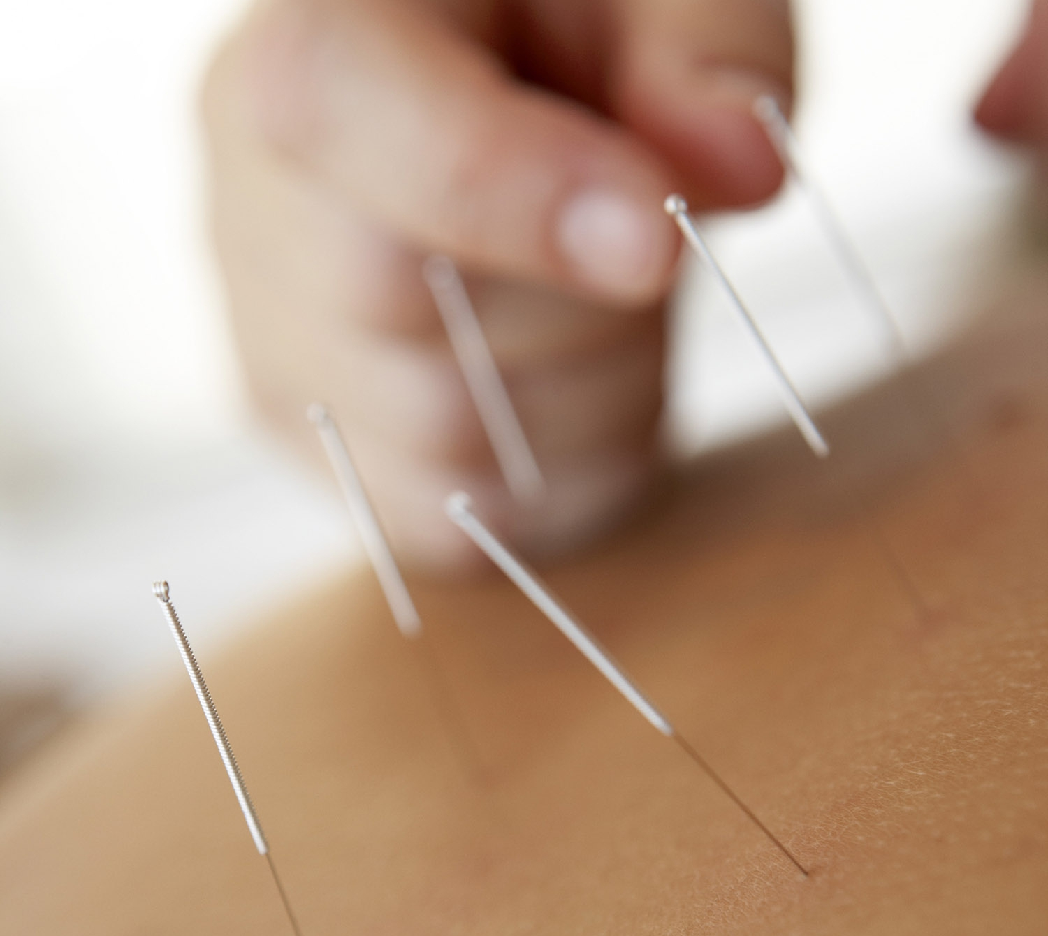 Acupuncture Schools In Texas